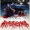 modhypothermia04